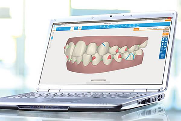 orthodontie-beaujolais